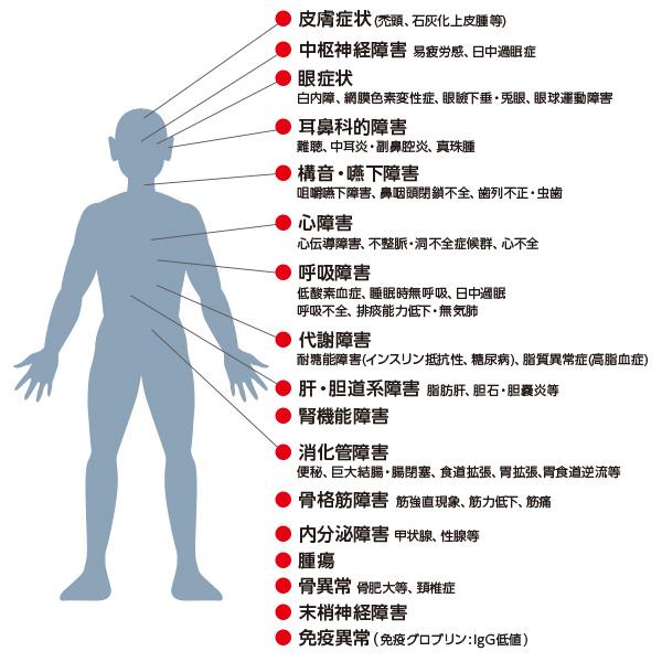 筋強直性ジストロフィーの多臓器障害